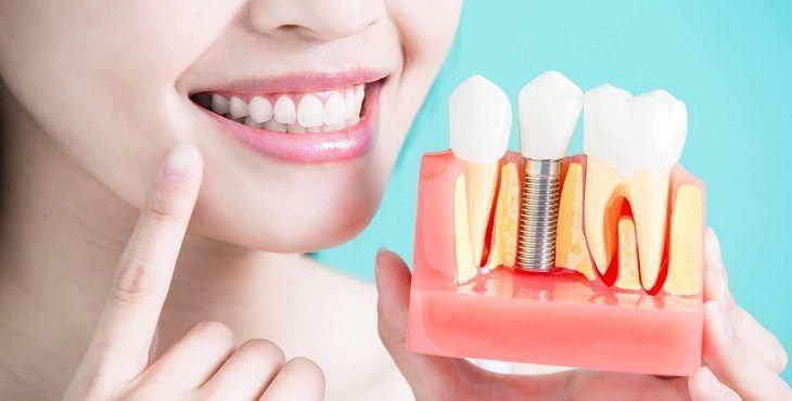 تركيبات الاسنان الزيركون