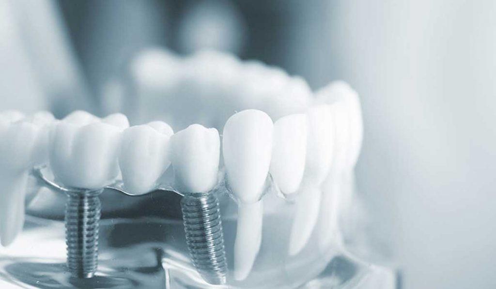 تركيب الاسنان في تركيا