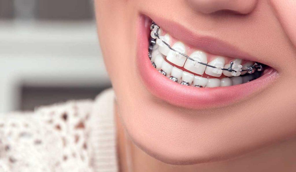 تركيب تقويم الأسنان