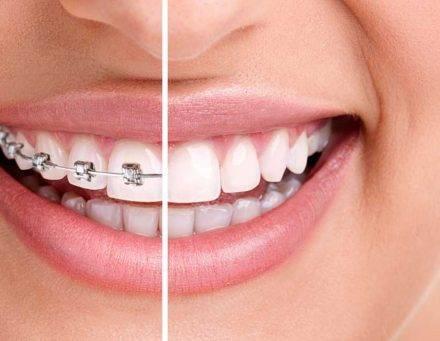 تقويم الاسنان الشفاف من السيراميك