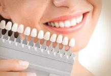 تكلفة تقويم الاسنان في تركيا