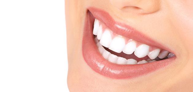 تكلفة تلبيس الاسنان في تركيا