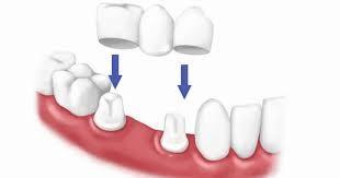 تجربتي مع عدسات الأسنان اللومينير