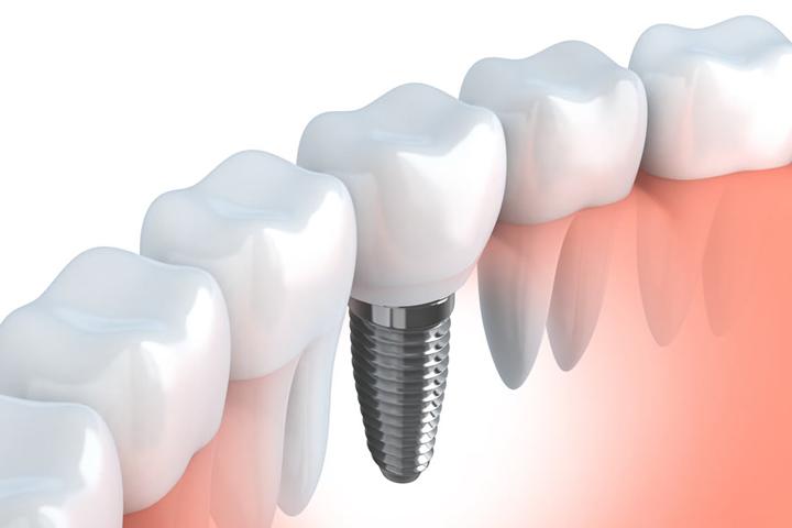 ثمن زراعة الاسنان في تركيا
