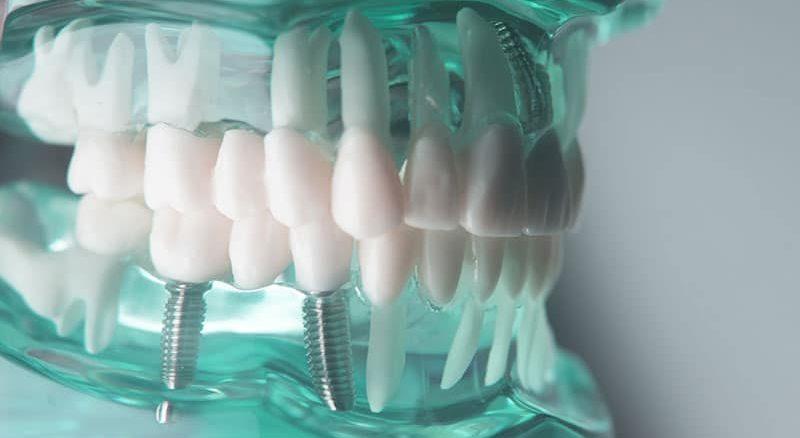 دكتور تقويم اسنان في اسطنبول