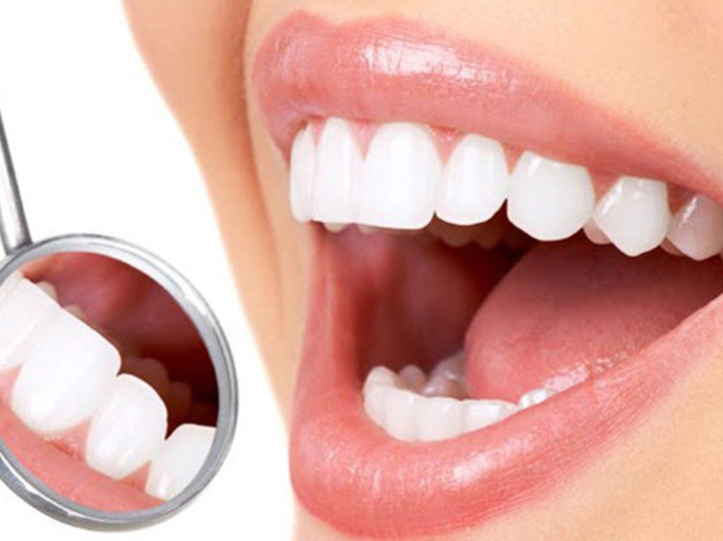زرعات الاسنان التركية