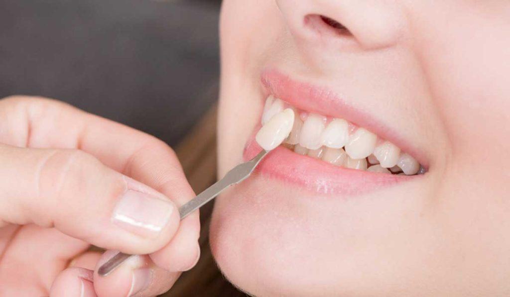 زرع عصب الاسنان
