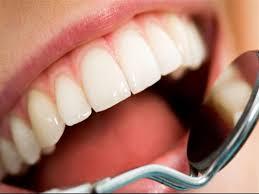 مراحل تلبيس الاسنان