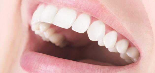 عملية تركيب الأسنان