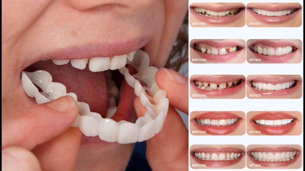 عيوب زراعة الاسنان الفورية