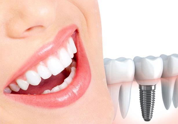 قبل زراعة الأسنان الفورية