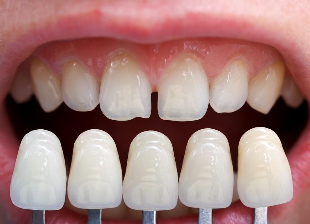 قشور الأسنان في تركيا
