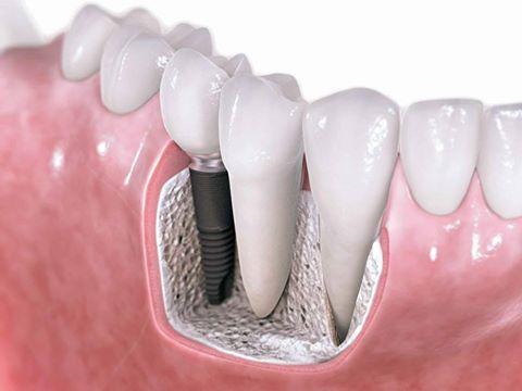 كيفية زرع الاسنان