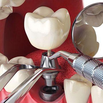مراحل زرع الاسنان