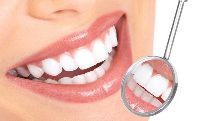مراكز تجميل الاسنان في أسطنبول