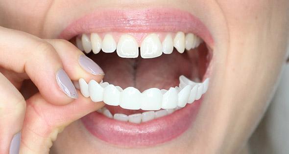 نصائح بعد عملية زراعة الاسنان