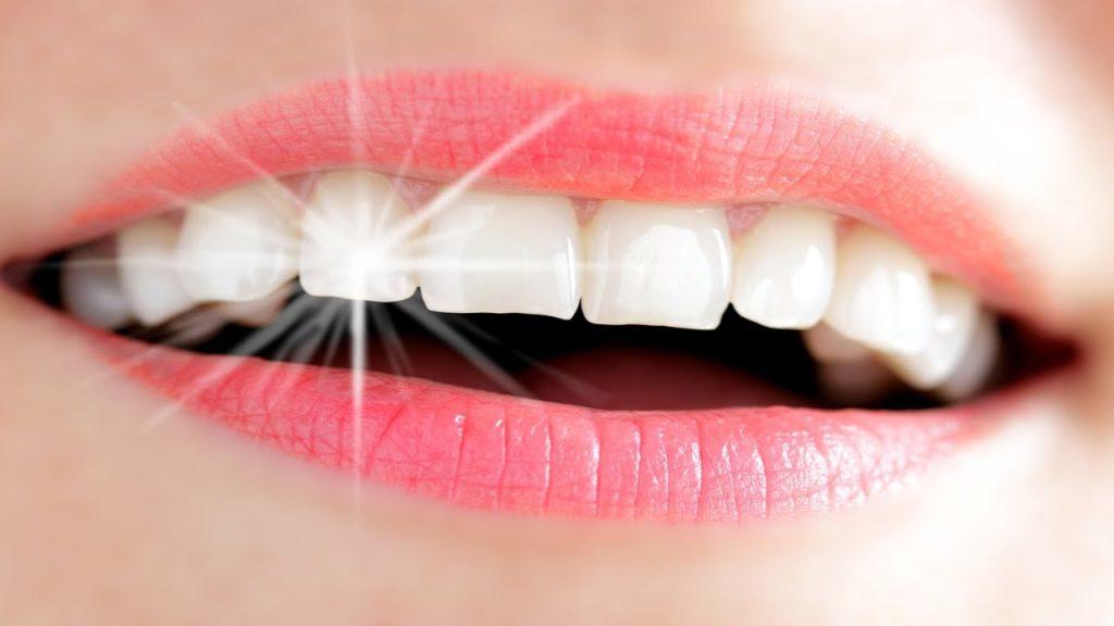 نصائح بعد عملية زرع الاسنان