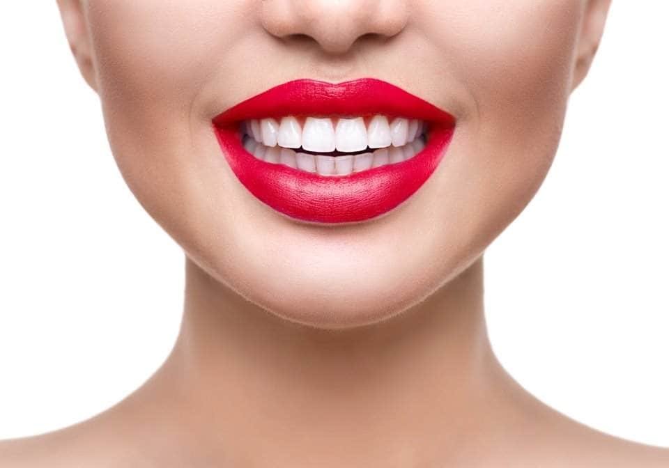 سعر تلبيس الاسنان الامامية