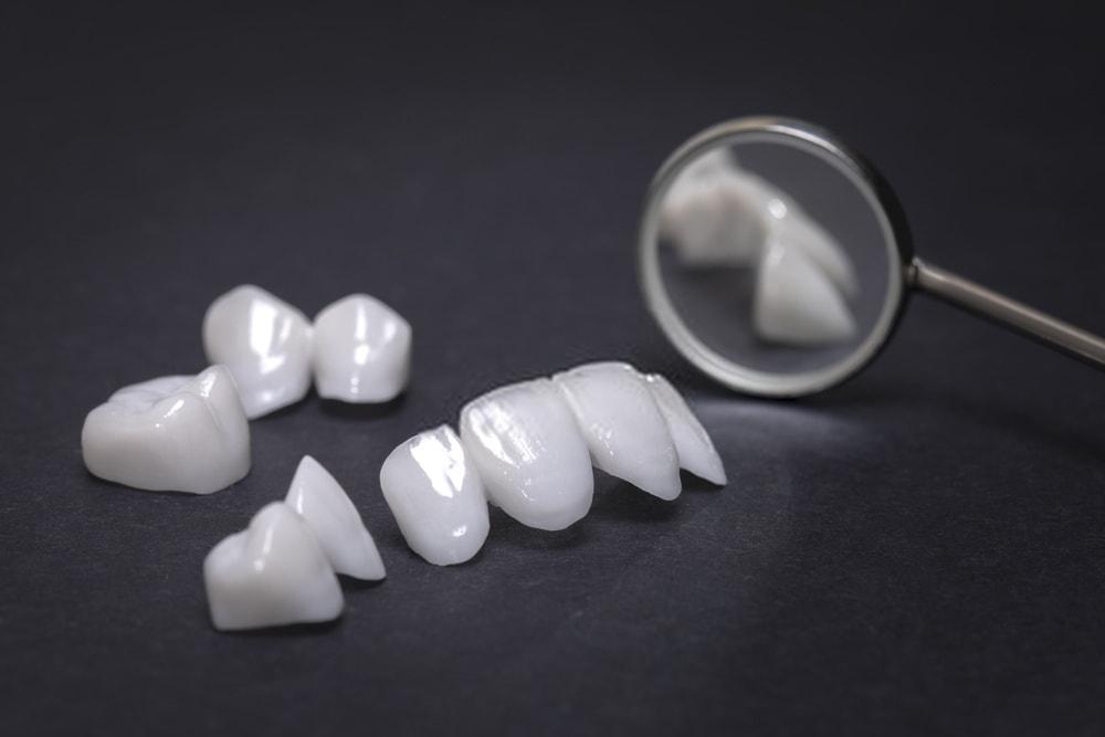 اسعار تقويم الأسنان في تركيا
