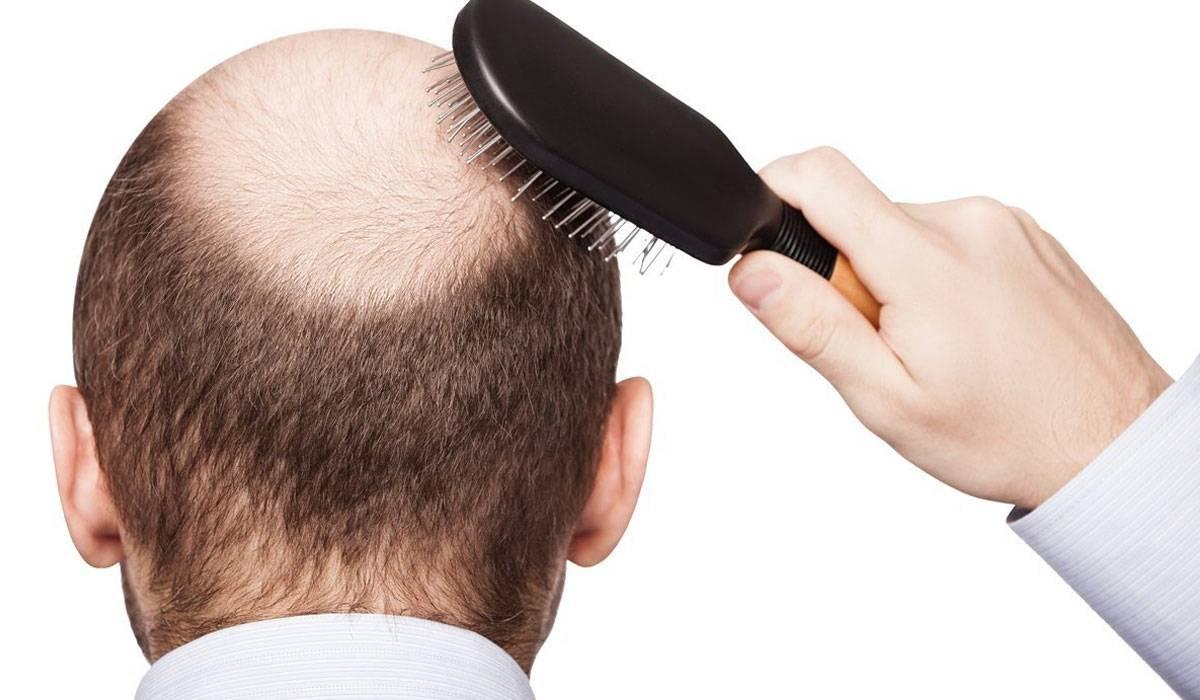 وتساقط الشعر من الجانبين