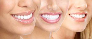 افضل طبيب اسنان في تركيا