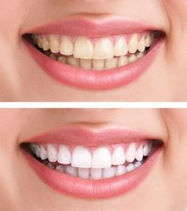 افضل عيادة تجميل اسنان في تركيا
