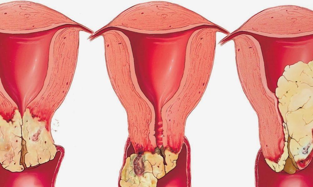 تجربتي في علاج قرحة الرحم بالعسل