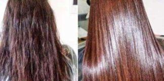 عيادات علاج الشعر بالرياض