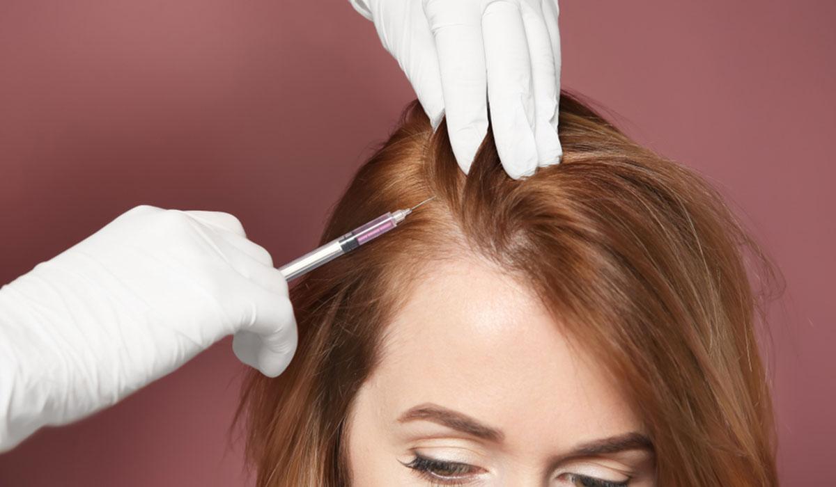 فوائد حقن البلازما بعد زراعة الشعر
